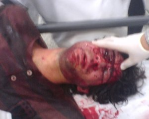 Students have faced violence for being at the forefront of anti regime demonstrations
